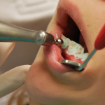 Good Dental Care Habits