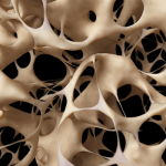 Osteoporosis Medication Dangers