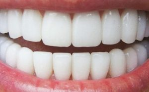 Alignment, Bleaching and Bonding vs Teeth Veneers