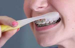 Tips On Brushing Teeth With Braces