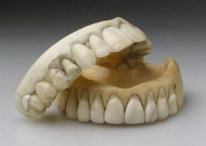 The Interesting History of Dentures