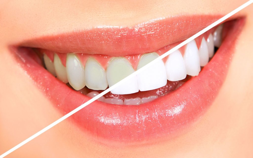 5 Ways You Can Whiten Your Teeth