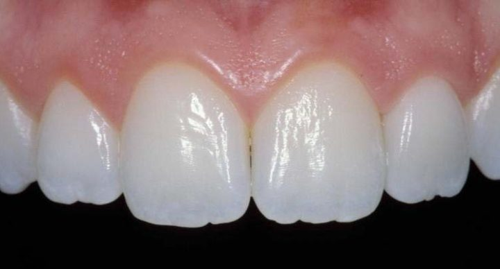 Porcelain Crowns: Why Do Dentist Often Recommend Them?