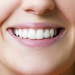 Natural Ways to Whiten Your Smile