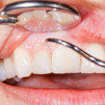 Foods That Help Improve Gum Health