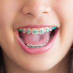 Keeping up Oral Hygiene with Braces