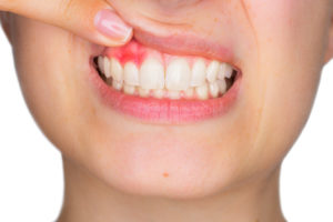 Revitalizing Smiles Gum Disease